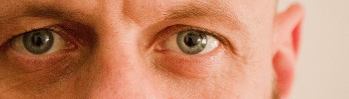 ruben ojos
